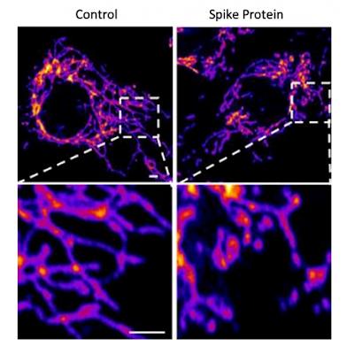Un estudio del Instituto Salk revela que la proteina espiga daña las células humanas